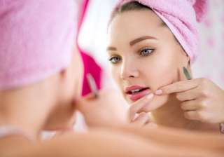 Want to get rid of pimples? Follow these 10...