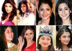 bollywood babes who went under knife