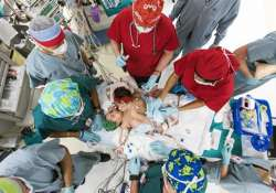 us surgeons separate 10 month old conjoined twin girls