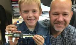 9-year-old Canada boy holds Guinness World Record for longest milk tooth extracted